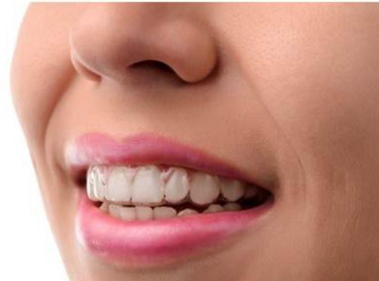 Les gouttières transparentes: un nouveau traitement orthodontique